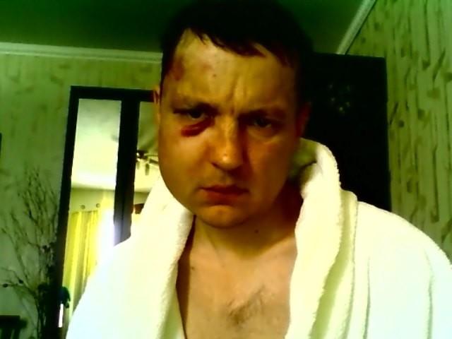 ВИркутске строго избили известного репортера